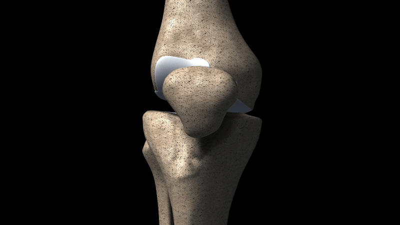 Anterolateral extra-articular procedures combined with ACL reconstruction